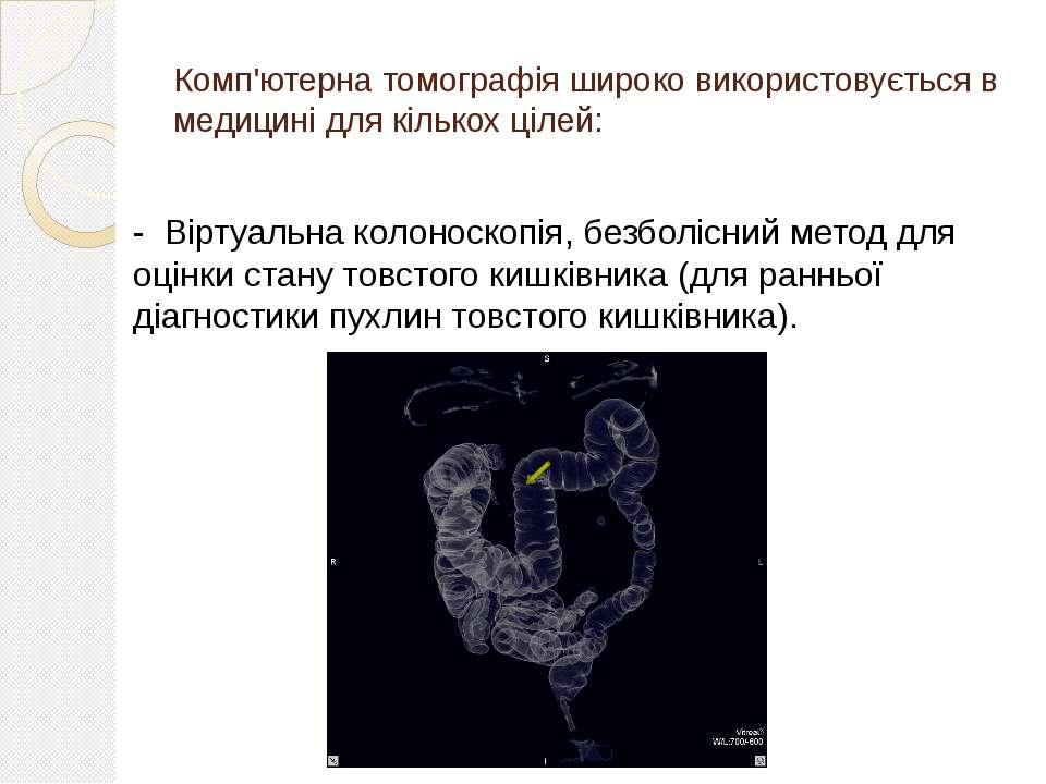 Комп'ютерна томографія широко використовується в медицині для кількох цілей: ...