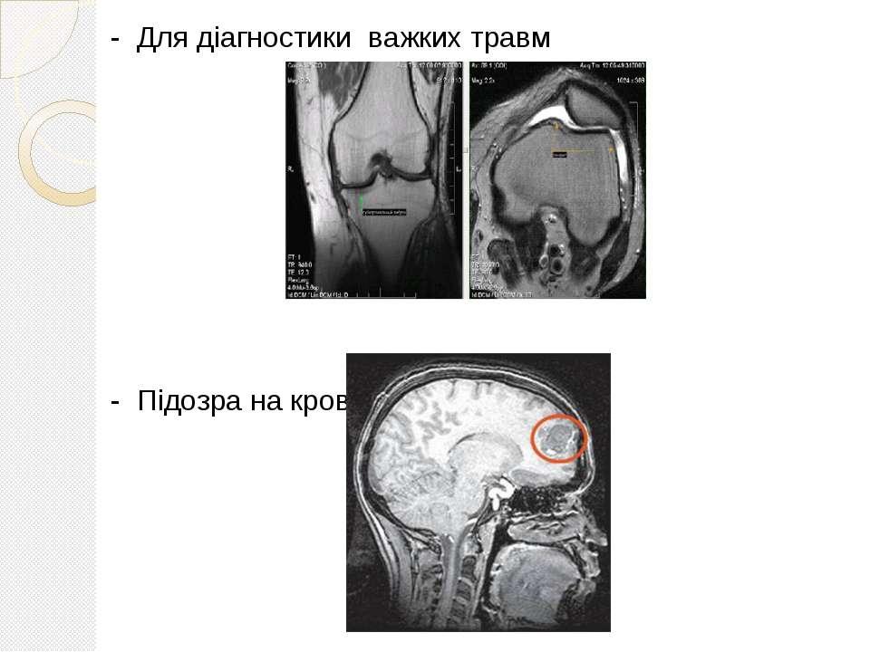 - Для діагностики важких травм - Підозра на крововилив у мозок;