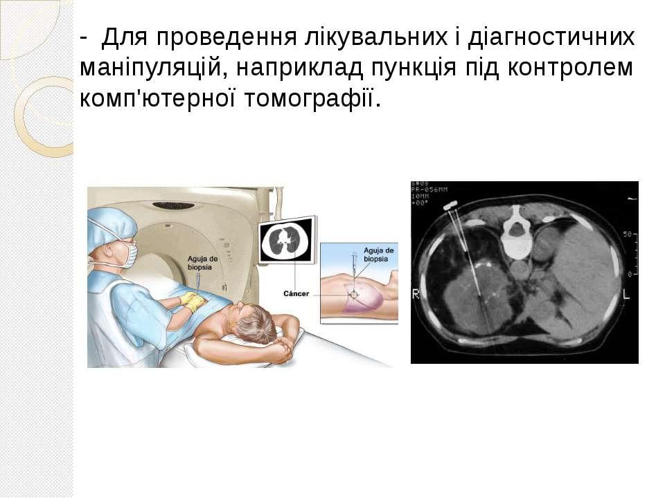 - Для проведення лікувальних і діагностичних маніпуляцій, наприклад пункція п...
