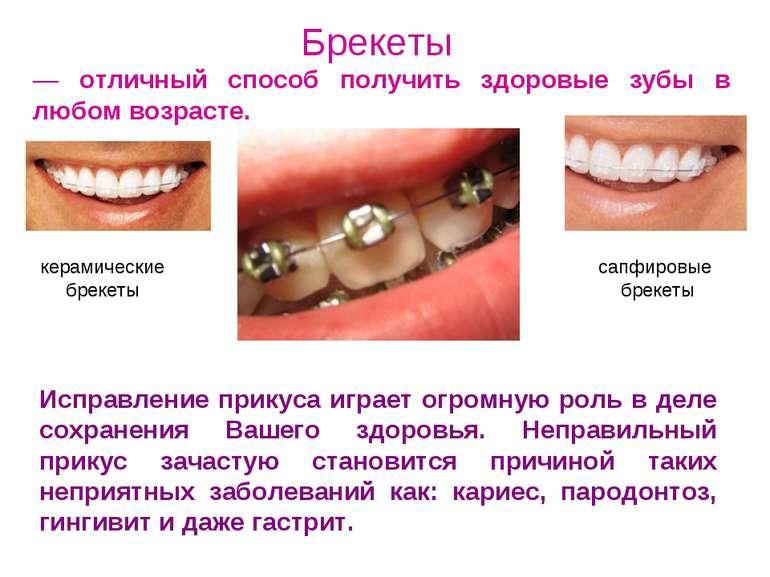 Брекеты — отличный способ получить здоровые зубы в любом возрасте. Исправлени...