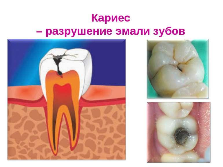 Кариес – разрушение эмали зубов