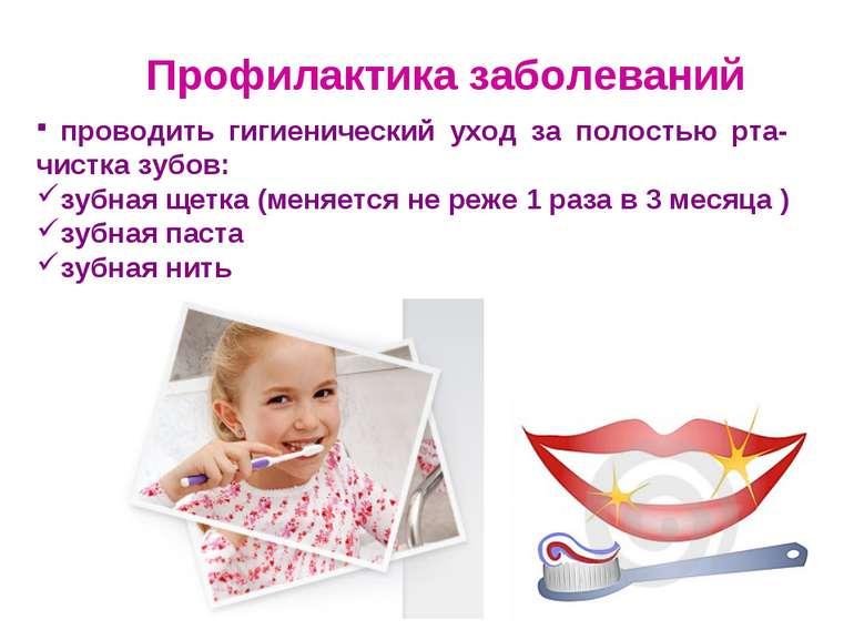 Профилактика заболеваний проводить гигиенический уход за полостью рта- чистка...