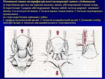 Початкові етапи екстрафасціальної екстерпації матки з додатками. а) пересікан...