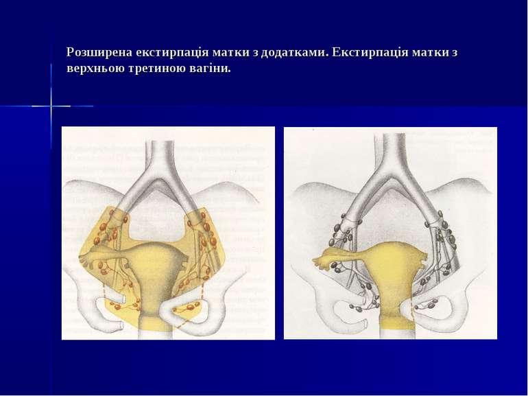 Розширена екстирпація матки з додатками. Екстирпація матки з верхньою третино...