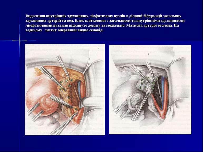 Видалення внутрішніх здухвинних лімфатичних вузлів в ділянці біфуркації загал...