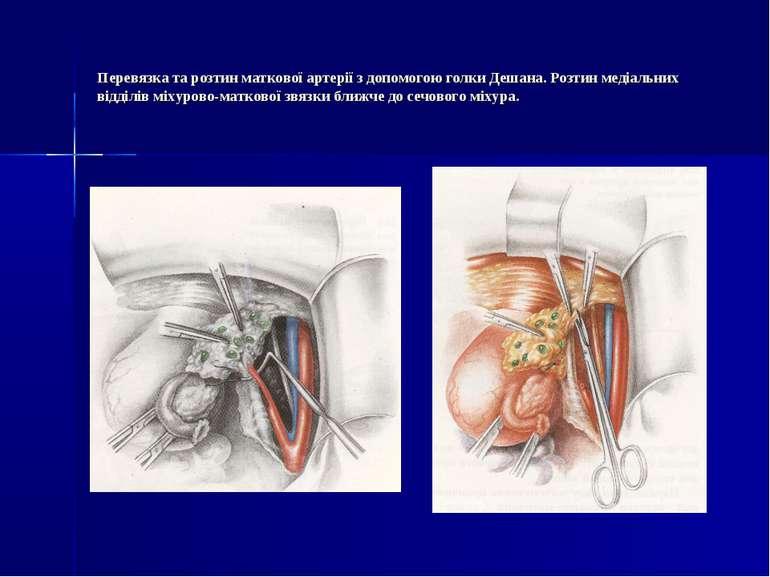 Перевязка та розтин маткової артерії з допомогою голки Дешана. Розтин медіаль...