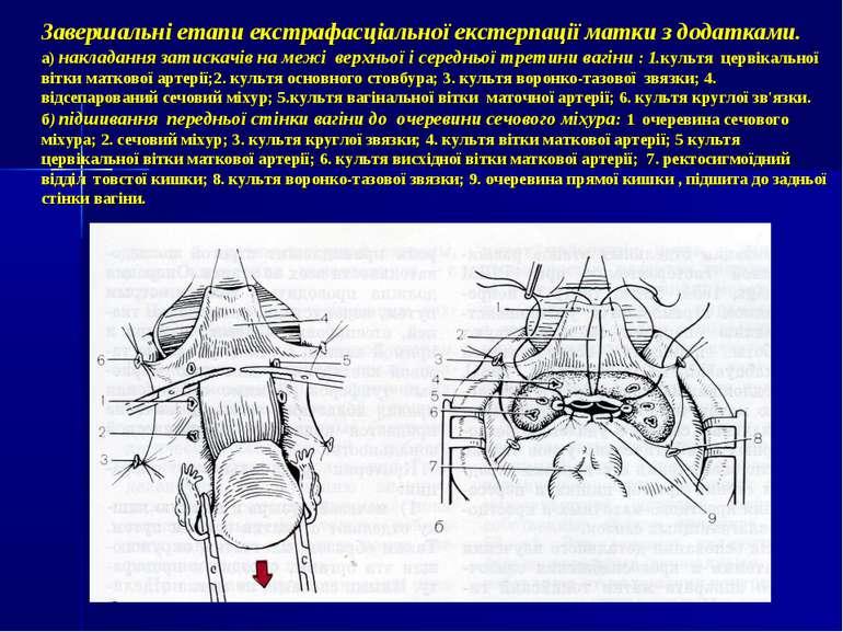Завершальні етапи екстрафасціальної екстерпації матки з додатками. а) наклада...