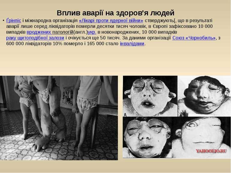 Вплив аварії на здоров'я людей Ґрінпісі міжнародна організація«Лікарі проти...