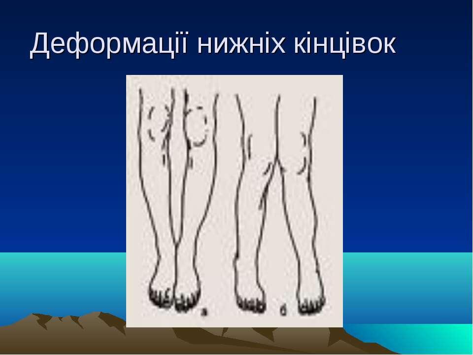 Деформації нижніх кінцівок
