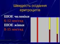 Швидкість осідання еритроцитів ШОЕ чоловіки 6-12 мм/год ШОЕ жінки 8-15 мм/год