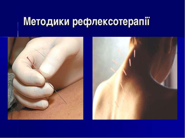 Методики рефлексотерапії