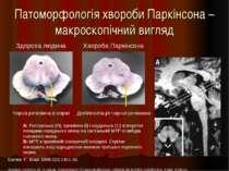 Патоморфологія хвороби Паркінсона – макроскопічний вигляд Damier P, Brain 199...