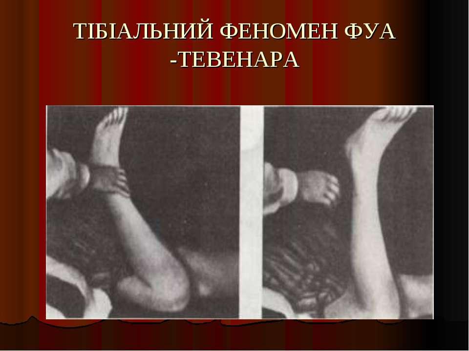 ТІБІАЛЬНИЙ ФЕНОМЕН ФУА -ТЕВЕНАРА
