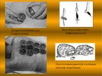 Епідермомембрана для годівлі вошей Виділення кишечника інфікованої воші Накоп...