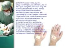 в)обробити шкіру навколо рани. Шкіру навколо рани на відстані 1,5-2 см від її...