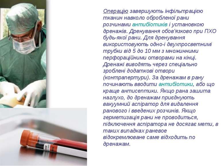 Операціюзавершують інфільтрацією тканин навколо обробленої рани розчинамиан...