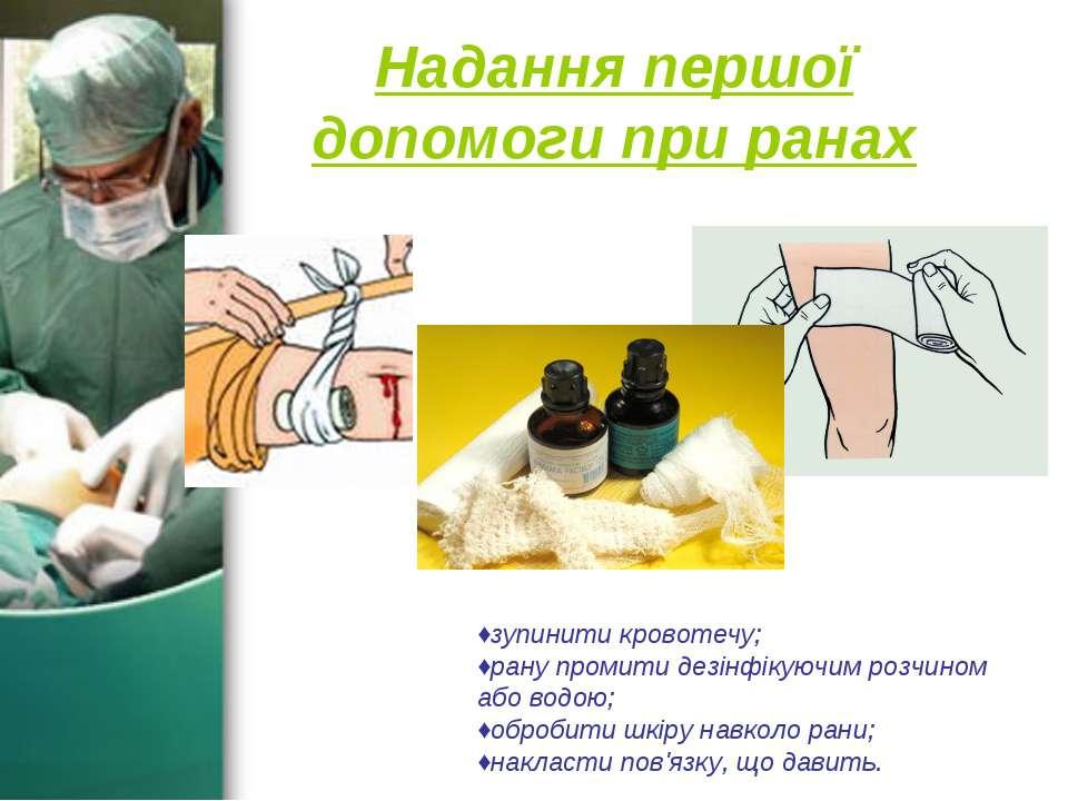 Надання першої допомоги при ранах ♦зупинити кровотечу; ♦рану промити дезінфік...