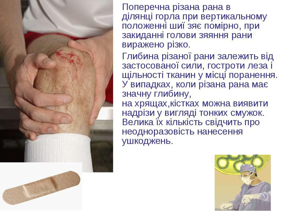 Поперечна різана рана в ділянцігорлапри вертикальному положенні шиї зяє пом...