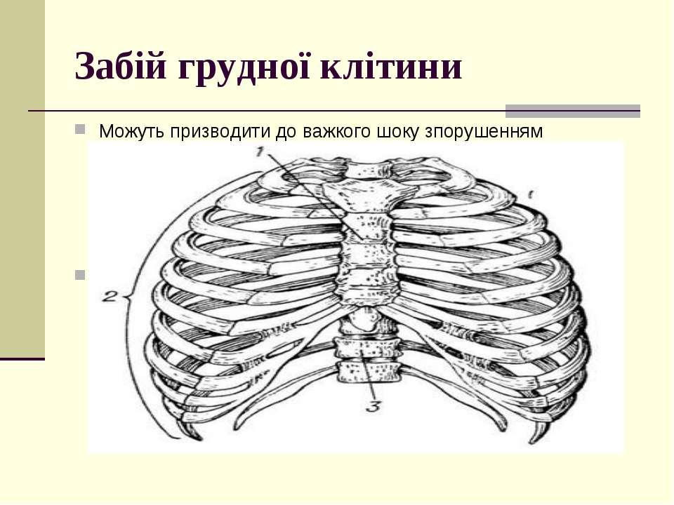 Забій грудної клітини Можуть призводити до важкого шоку зпорушенням кровообіг...