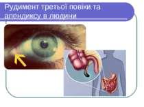 Рудимент третьої повіки та апендиксу в людини