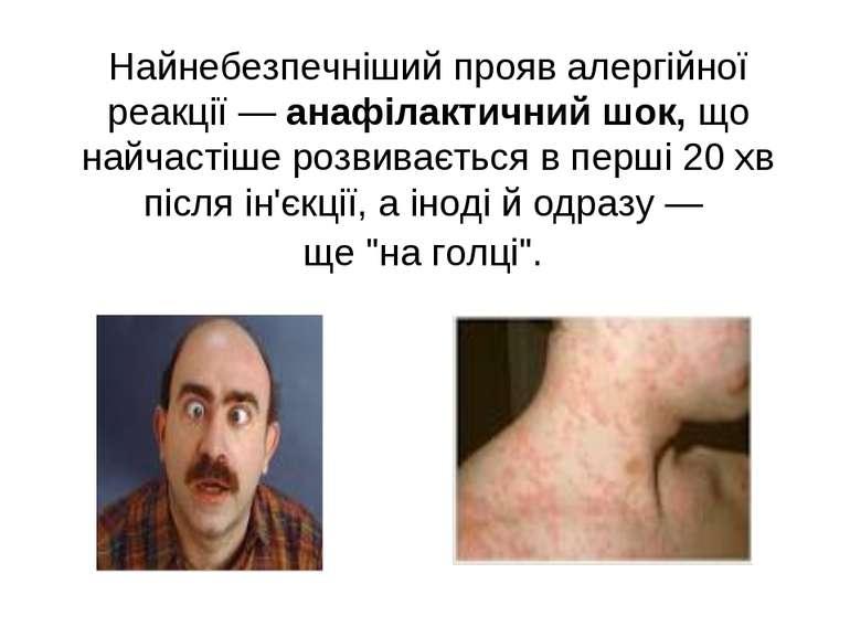 Найнебезпечніший прояв алергійної реакції — анафілактичний шок, що найчастіше...