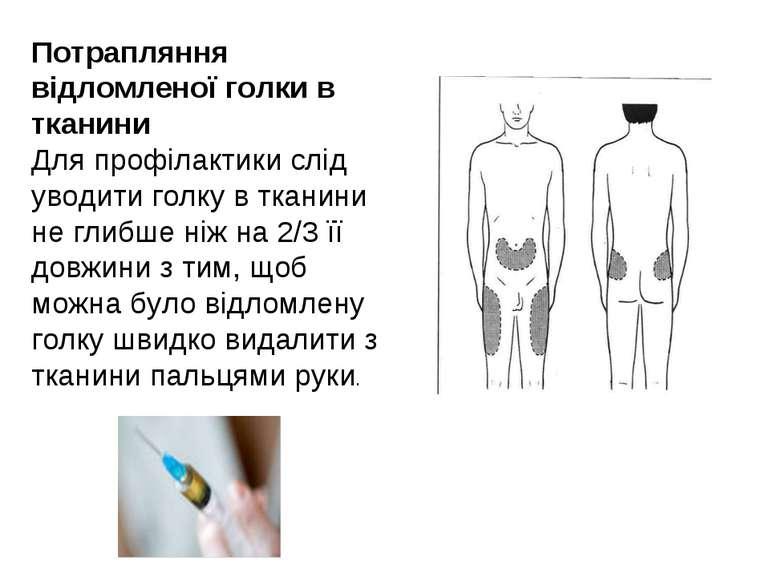 Потрапляння відломленої голки в тканини Для профілактики слід уводити голку в...