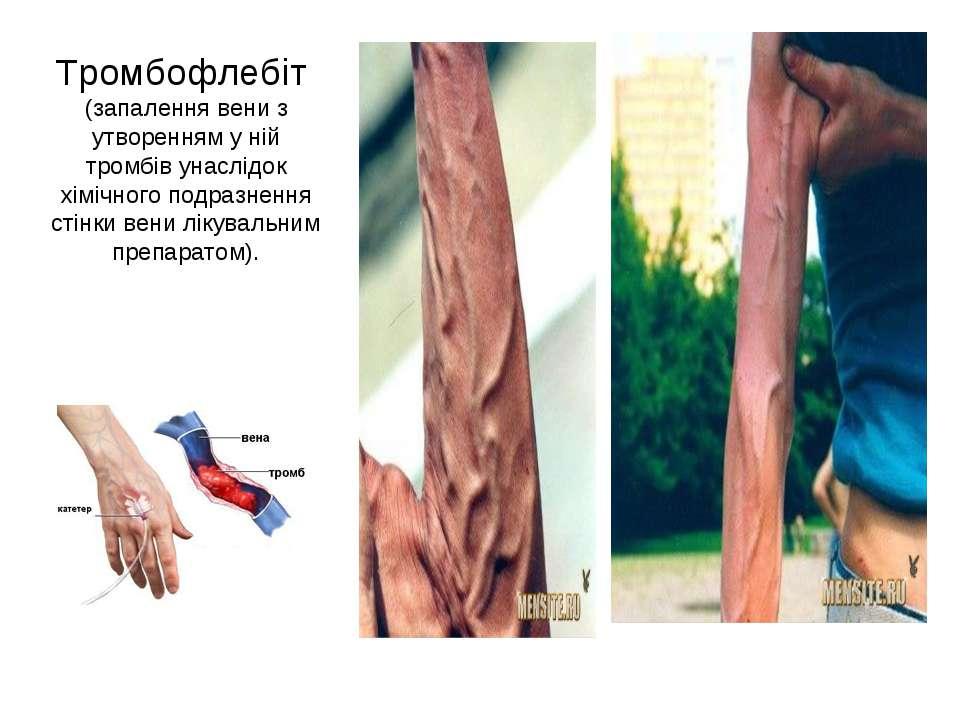 Тромбофлебіт (запалення вени з утворенням у ній тромбів унаслідок хімічного п...
