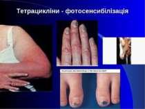 Тетрацикліни - фотосенсибілізація