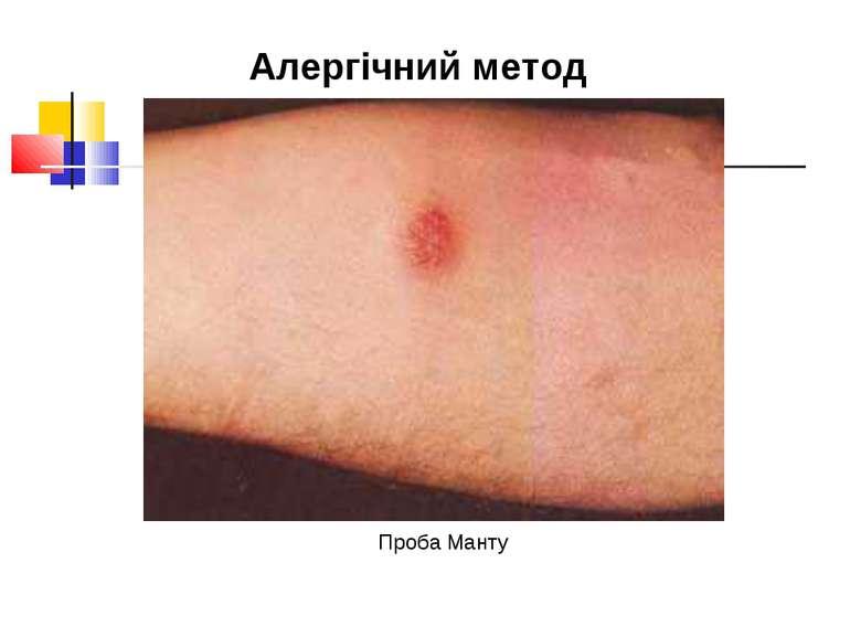 Проба Манту Алергічний метод