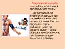 Гіпертонічна хвороба — синдром підвищення артеріального тиску. При артеріаль...