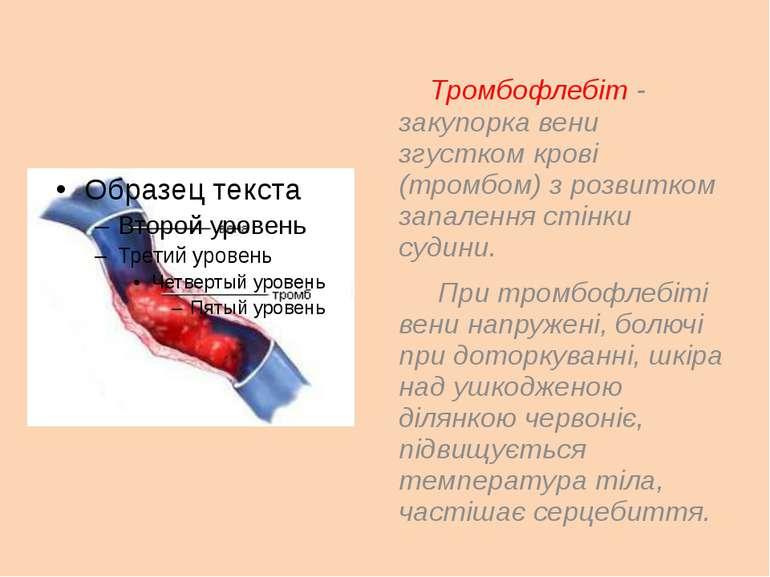 Тромбофлебіт - закупорка вени згустком крові (тромбом) з розвитком запалення ...