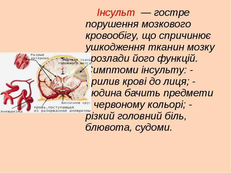 Інсульт — гостре порушення мозкового кровообігу, що спричинює ушкодження тка...