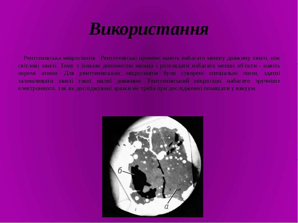 Використання Рентгенівська мікроскопія. Рентгенівські промені мають набагато ...