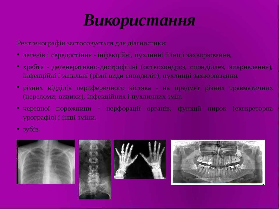 Використання Рентгенографія застосовується для діагностики: легенів і середос...