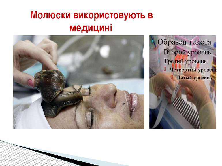 Молюски використовують в медицині