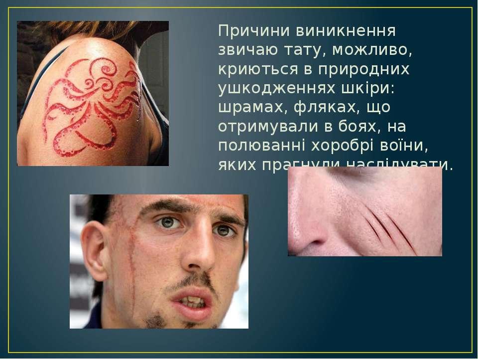 Причини виникнення звичаю тату, можливо, криються в природних ушкодженнях шкі...