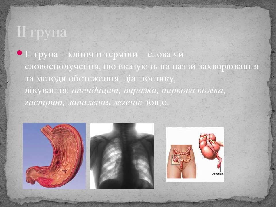 ІІ група – клінічні терміни – слова чи словосполучення, що вказують на назви ...