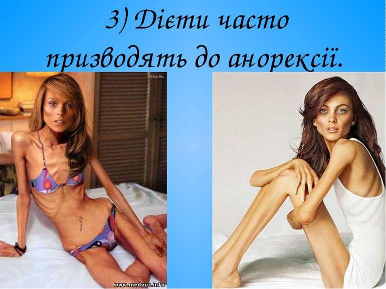 3) Дієти часто призводять до анорексії.