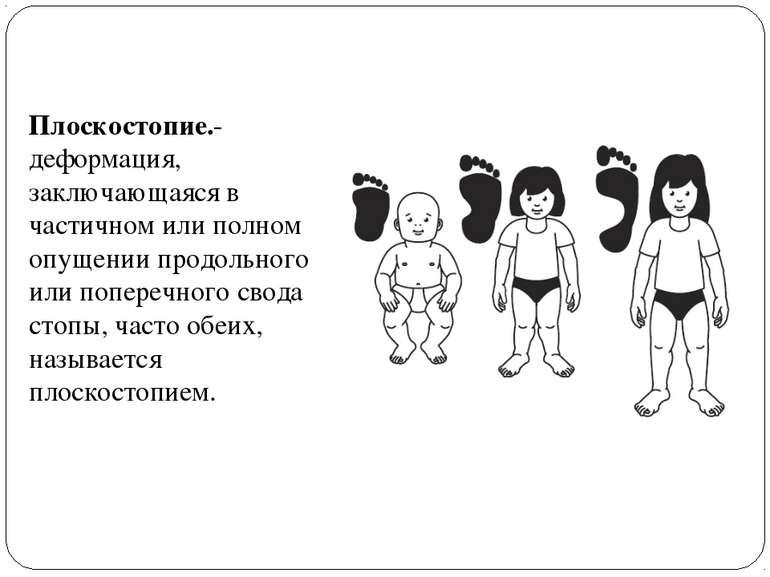 Плоскостопие.-деформация, заключающаяся в частичном или полном опущении продо...