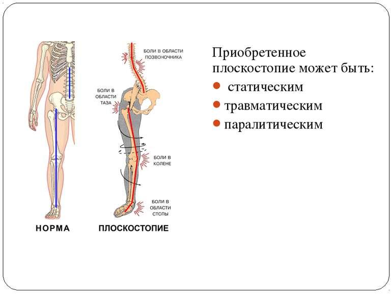 Приобретенное плоскостопие может быть: статическим травматическим паралитическим