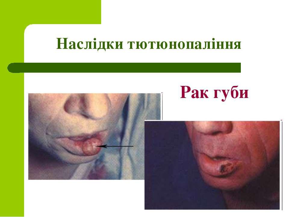 Наслідки тютюнопаління Рак губи