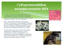 Губчастоподібна енцефалопатія ВРХ По вільно прогресуюча інфекційна хвороба, щ...