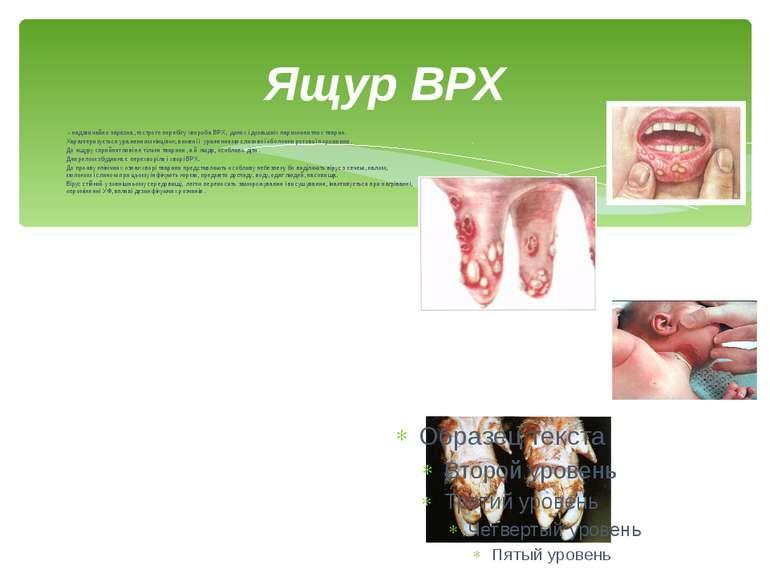 Ящур ВРХ - надзвичайно заразна, гострого перебігу хвороба ВРХ, диких і домаш...