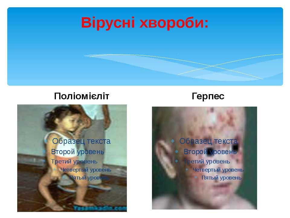 Вірусні хвороби: Поліомієліт Герпес