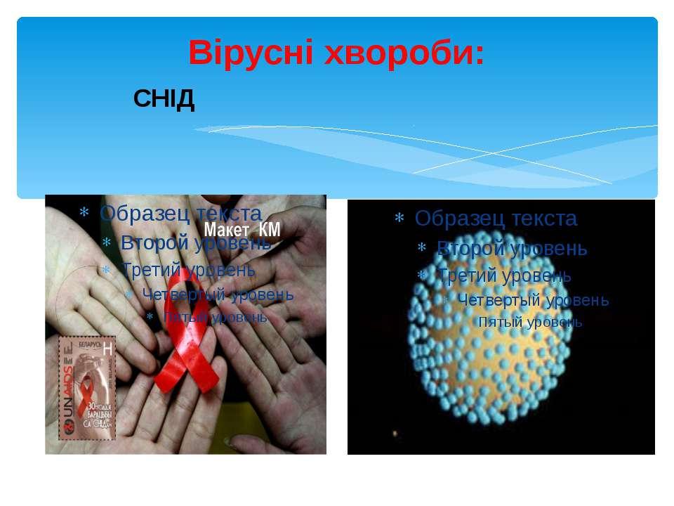Вірусні хвороби: СНІД