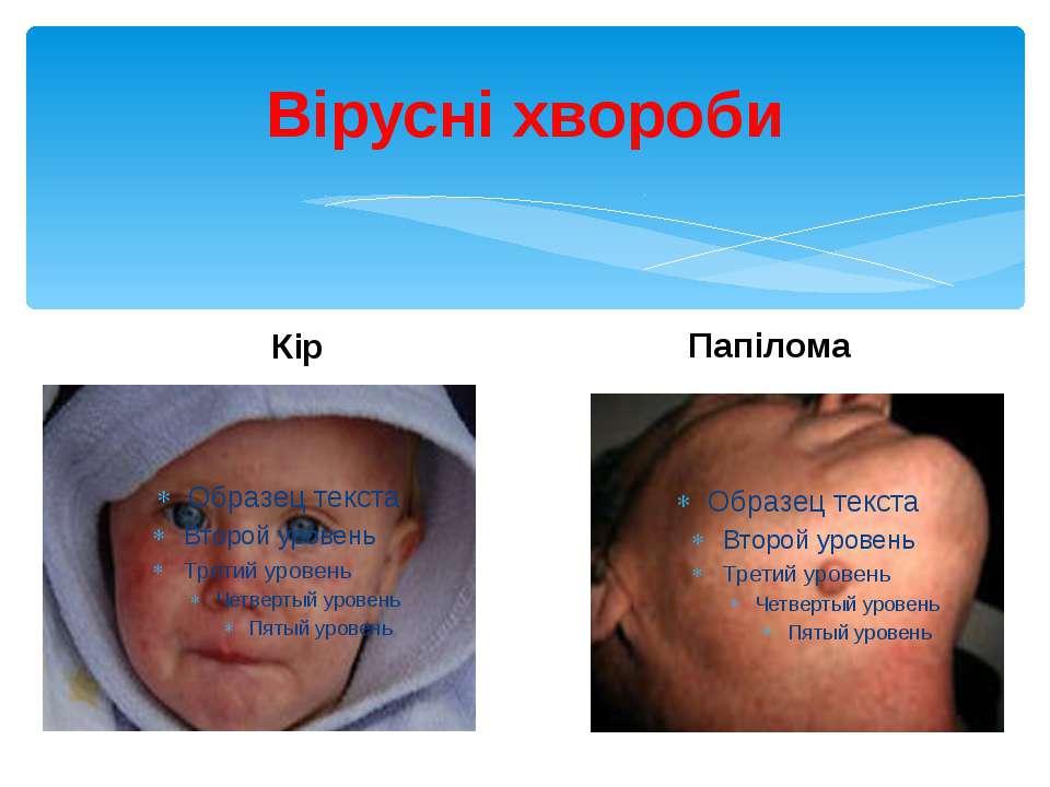 Вірусні хвороби Кір Папілома
