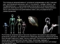 Рентге нівське випромі нювання, пулюївське випромінювання або Х-промені (рос....