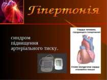синдром підвищення артеріального тиску.