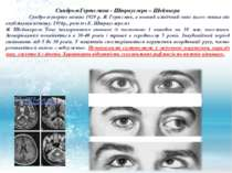 Синдром Гертсмана - Штрауслера – Шейнкера Синдром уперше виявив 1928 р. Я. Ге...