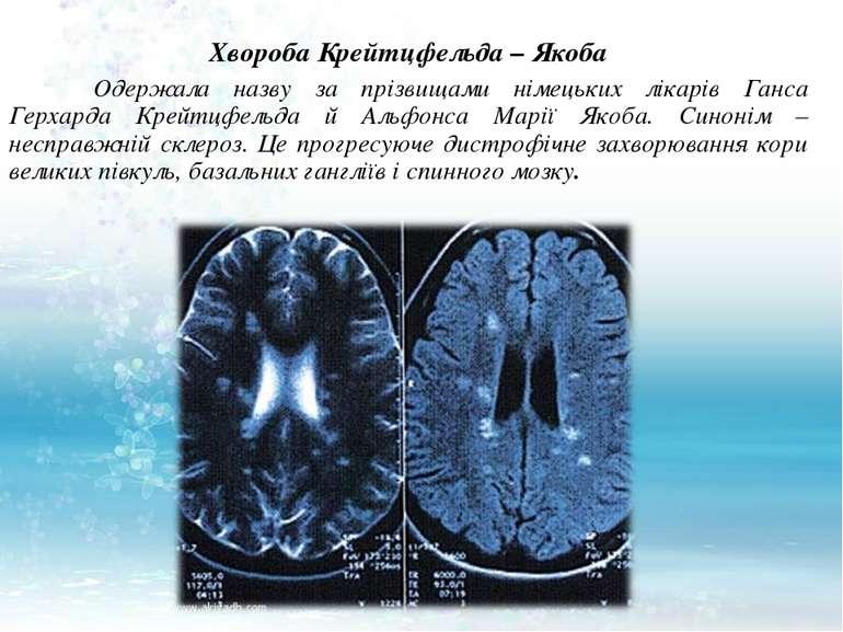 Хвороба Крейтцфельда – Якоба Одержала назву за прізвищами німецьких лікарів Г...